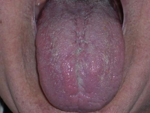 Zungendiagnose - Grundkurs - auf Triviar